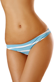 Liposuction Model 2
